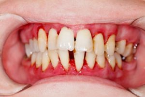 A dental patient with gum disease and gum recession